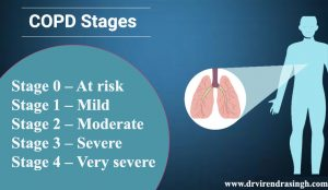 COPD Stage